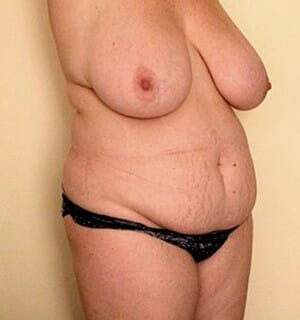 tummy tuck procedure - patient before photo