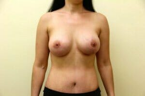 san diego tummy tuck with breast augmentation- patient after photos