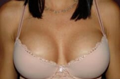 Breast Augmentation San Diego, After photo | Jaibaji Plastic Surgery