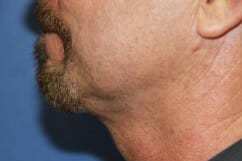 Neck Liposuction for men San Diego | Jaibaji Plastic Surgery