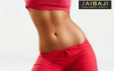 Five Things To Expect from Tummy Tuck Surgery